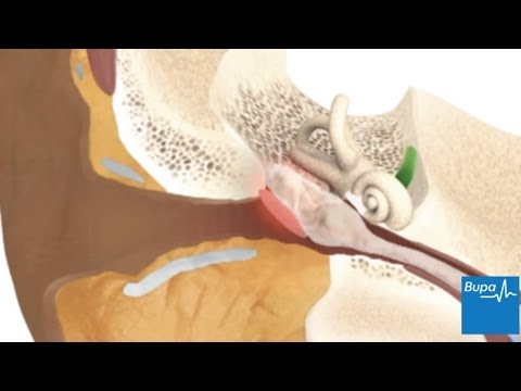 How glue ear develops
