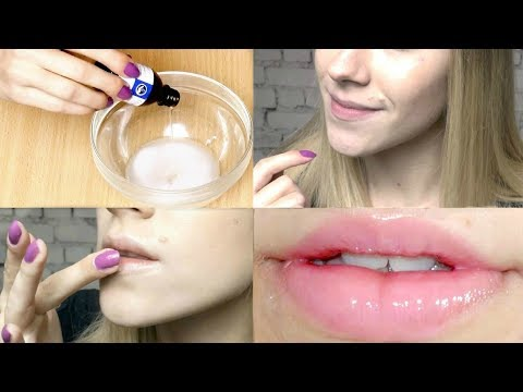 How To Get Rid of Dry Lips, Chapped Lips & Dark Lips Permanently