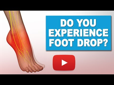 Exercises to Manage Foot Drop | MS Exercises