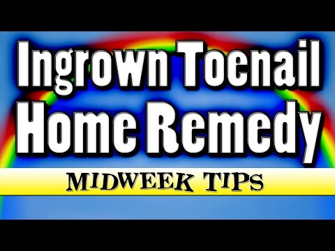 Infected Ingrown Toenail Home Remedy