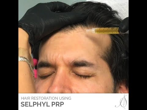 Hair Restoration with a Selphyl PRP Treatment