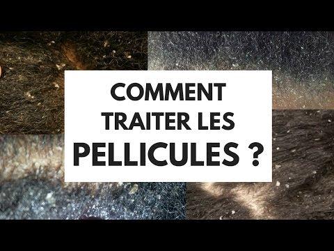 COMMENT TRAITER LES PELLICULES