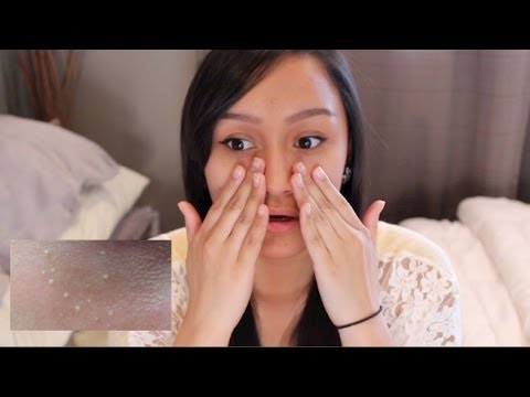 my skin type & dealing with milia | francinemarie