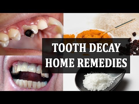 Home Remedies For Tooth Decay Pain | Toothache Pain Relief | How To Remove Black Germs From Teeth