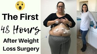 FIRST 48 HOURS AFTER VSG ● WHAT HAPPENED? ● GASTRIC SLEEVE SURGERY