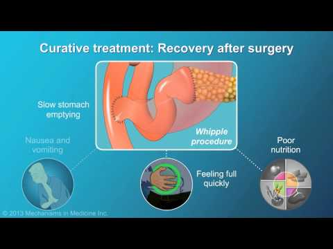 Pancreatic Cancer: Treatment and Outcomes