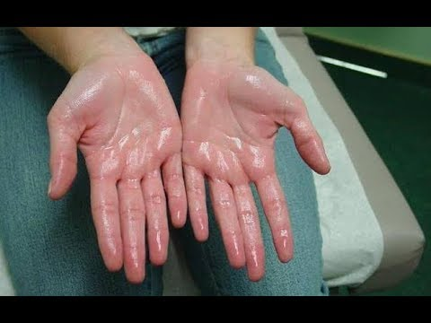 Stop Sweating On Your Palm And Feet Quickly Withe These Remedies