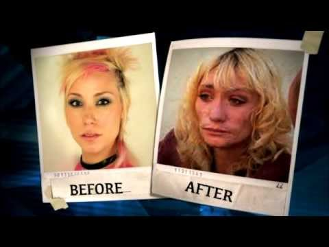 A Sobering Look at What Meth Can Do to Your Appearance