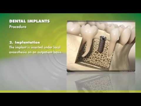 Straumann Dental Implants   / Tricare
