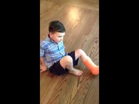 Charlie with his cast