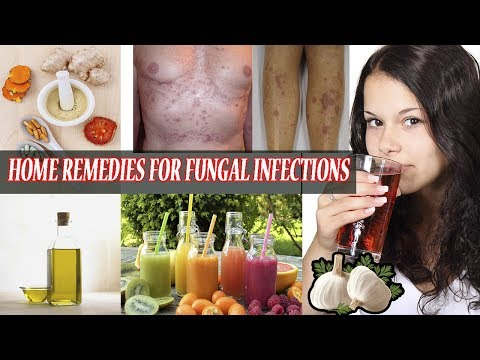 Home Remedies for Fungal Infections    How To Get Rid of Fungal Infection Fast At Home Naturally