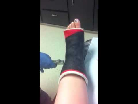 Cast removal 2012