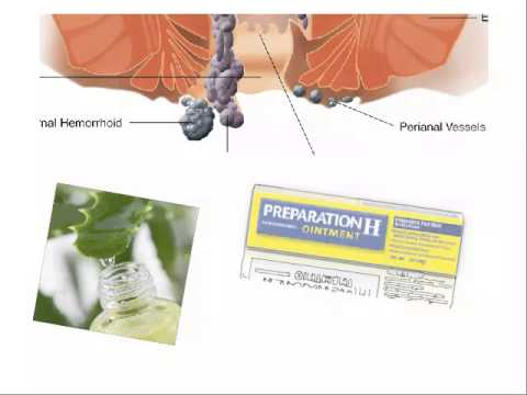 INTERNAL HEMORRHOIDS Treatment | How to TREAT Internal HEMORRHOIDS| INTERNAL Hemorrhoids