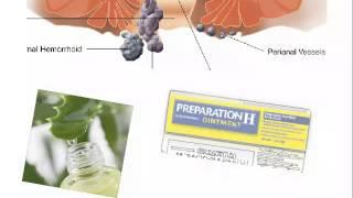Internal Hemorrhoids Treatment How To Treat Internal Hemorrhoids Inte