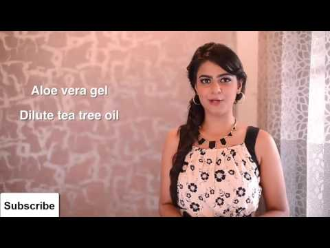 Home Remedies For Canker Sores -  Best Home Remedies For Canker Sores