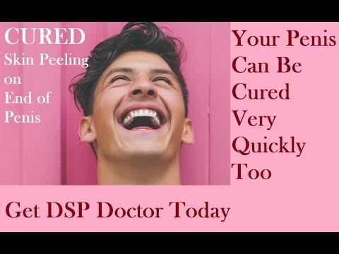 Skin peeling on Bellend of Penis?