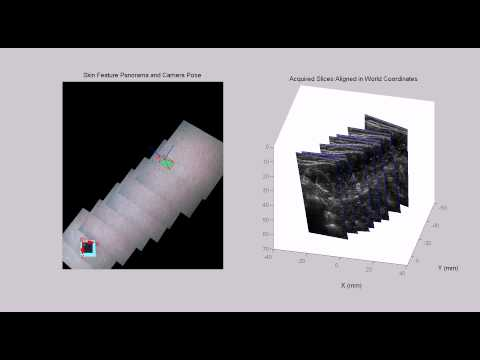 Freehand 3D Ultrasound Volume Imaging Using a Miniature-Mobile 6-DOF Camera Tracking System