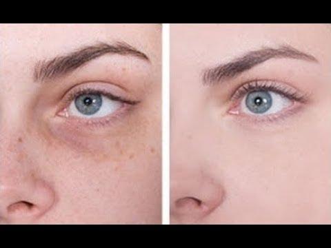 Dark circles, wrinkles removal, anti ageing eye cream DIY powerful homemade under eye gel
