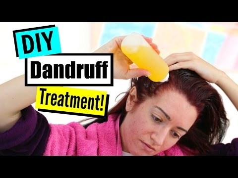 HOW TO CURE DANDRUFF! Treatment, Home Remedies & Best Shampoo!