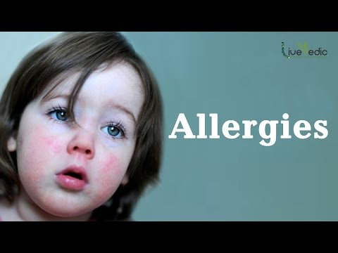 DIY: Best Cure For Kids Allergies with Natural Home Remedies | LIVE VEDIC