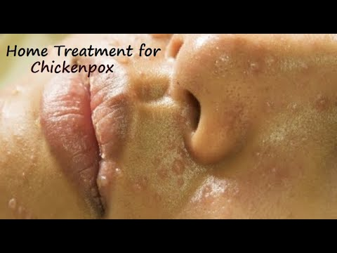 Natural Home Remedies for Chicken Pox – Care during chickenpox