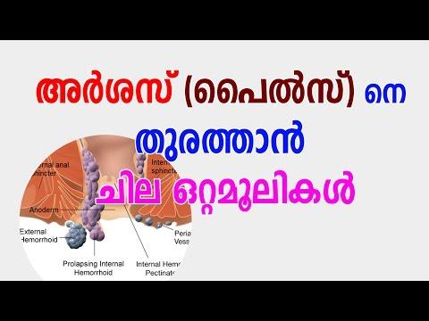 അര്ശസ്സിന് ആയുര്വേദ ചികിത്സ - Ayurvedha Remedies for Piles