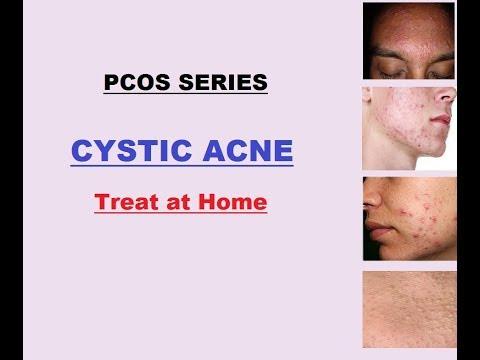 PCOS Series - ACNE treatment at home -(Urdu/hindi n English)