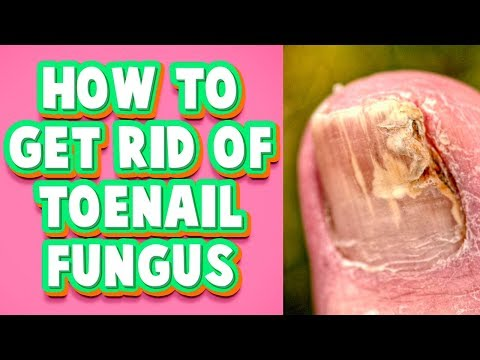 Toenail Fungus Treatment at Home: A Fast Cure You Must Try
