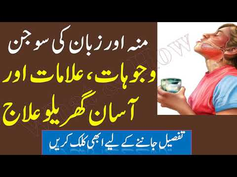 Home remedies for Swelling of mouth and tongue منہ کی سوجن - What & How