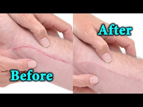 Keloid Scar Removal - Home Natural Remedies