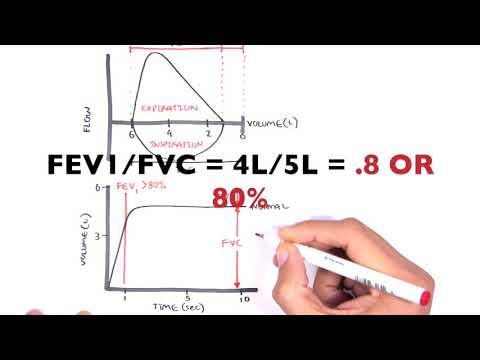 Understanding Spirometry - Normal, Obstructive vs Restrictive