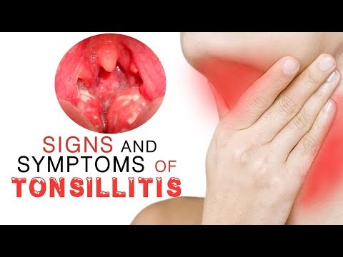 Signs and Symptoms of Tonsillitis