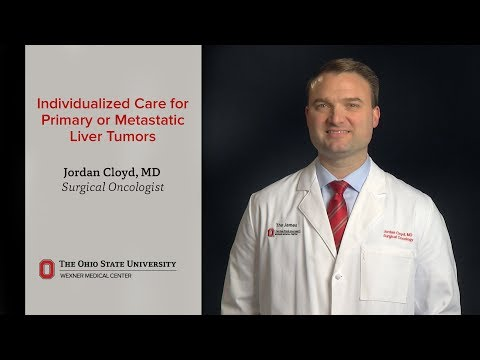 Individualized care for liver tumors at OSUCCC – The James