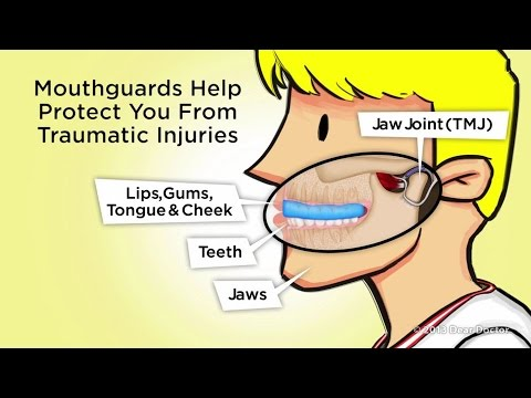 Athletic Mouthguards