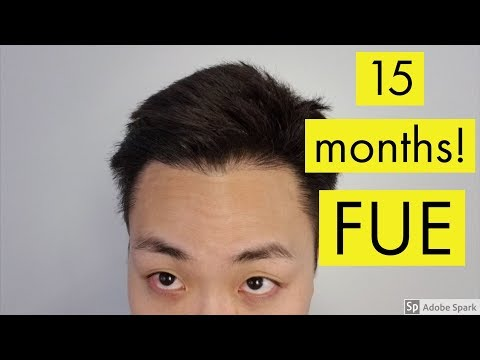 15 MONTH UPDATE! FUE HAIR TRANSPLANT RESULTS!