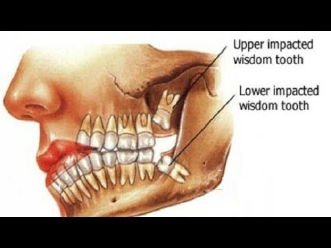 5 Home Remedies for Wisdom Tooth Pain.
