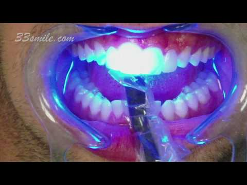 Improving a Patient's Smile with Porcelain Dental Veneers at Cosmetic Dental Associates