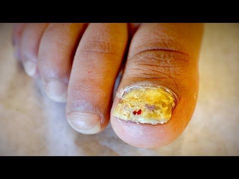 AMAZING TOENAIL FUNGUS & FOOT RASH (Tinea Unguium) | Dr. Paul
