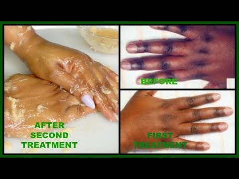 HOW TO CLEAR DARK ROUGH KNUCKLES | POTATO AND BROWN SUGAR FOR CLEAR SOFT HANDS |Khichi Beauty