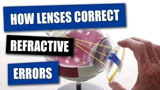 How Opticians Use Lenses To Correct Refractive Errors