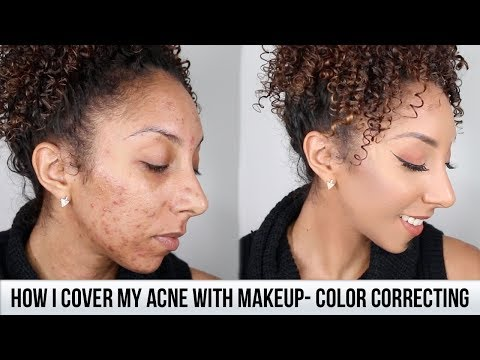 How I Cover My Acne With Makeup + Color correcting!| BiancaReneeToday