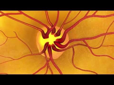 Animation: Detecting glaucoma through a dilated eye exam.