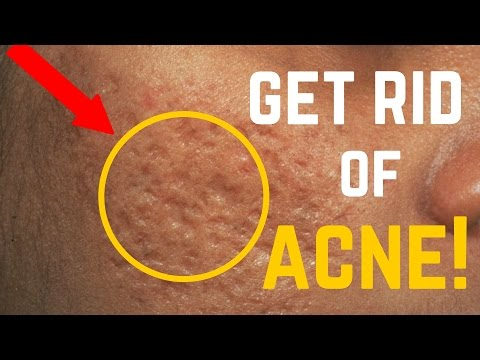5 Ways to Remove Acne Scars, Dark Spots & Fine Lines FAST!