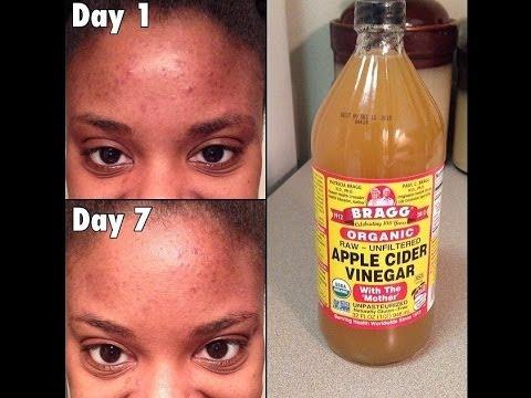 Apple Cider Vinegar Face Routine