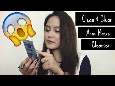 Review: Clean and Clear Acne Marks Cleanser   Tish Ortz