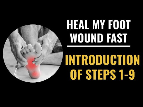 Heal My Foot Wound Fast Introduction of Steps 1-9