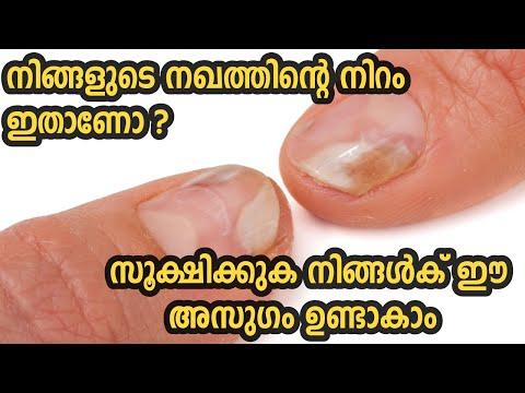 നിങ്ങളുടെ നഖത്തിന്റെ നിറം ഇതാണോ? സൂക്ഷിക്കുക നിങ്ങൾക് ഈ അസുഗം ഉണ്ടാകാം Nails Say About Your Health