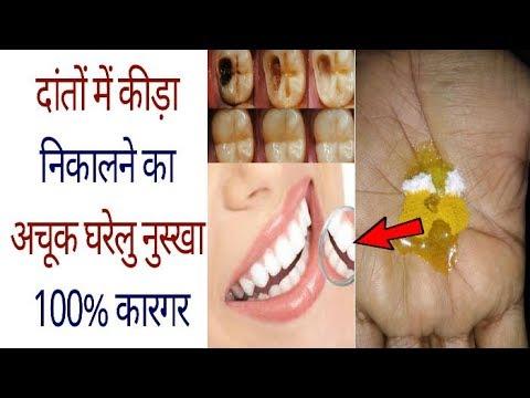 सिर्फ एक बार इस्तेमाल से दांत का कीड़ा बाहर निकालें / How To Get Rid Of Tooth Cavity 100% Effective