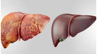4 FOODS THAT CAN DETOX YOUR LIVER FAST AND KEEP IT HEALTHY !   Health Vlogger