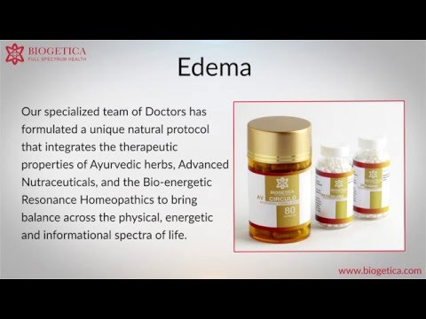 Can Natural Edema Treatment of cure Edema ?
